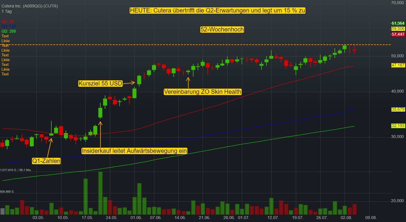 Cutera Inc. (14,90%)
